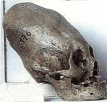 Artificially deformed skull of Bulgars