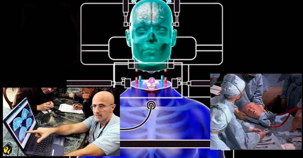Primeiro transplante de cabeça efetuado, de acordo com este neurocirurgião