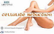 Get Rid of Cellulite Quickly and Naturally | Best Diet for Cellulite Reduction