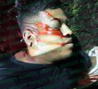 Balacera en Xalapa ejecutan a motociclista en Unidad Magisterial