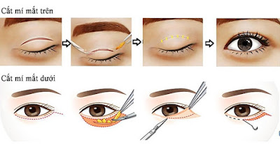 Kết quả sau phẫu thuật cắt mí mắt tồn tại lâu không? 2