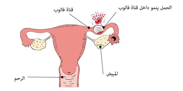حالة حمل خارج الرحم