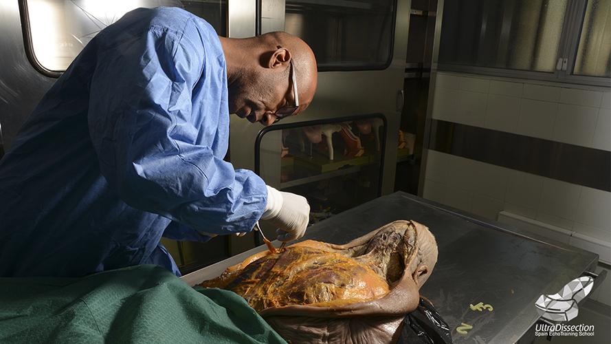 UltraDissection Group: Una introducción a los cadáveres conservados ...
