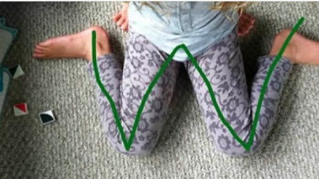 Larang Anak Anda Duduk Bersila Membentuk Huruf