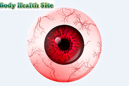 Causes of conjunctivitis