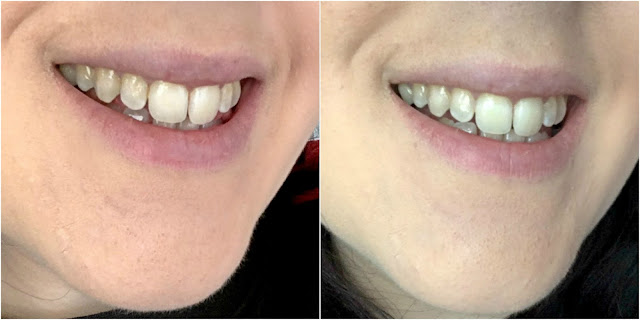 Nano Intensive Teeth Whitening Strips Before And After