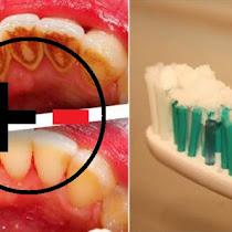 Ini Lho Bahaya Dan Manfaat Baking Soda Untuk Memutihkan Gigi