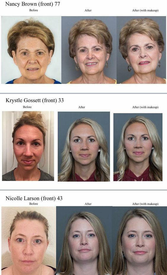 skincare-youth