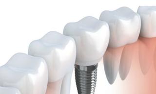 ¿Qué pasa si no se cuidan los implantes dentales como se debe?