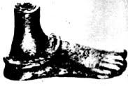 Image result for bronze foot anklet mohenjodaro