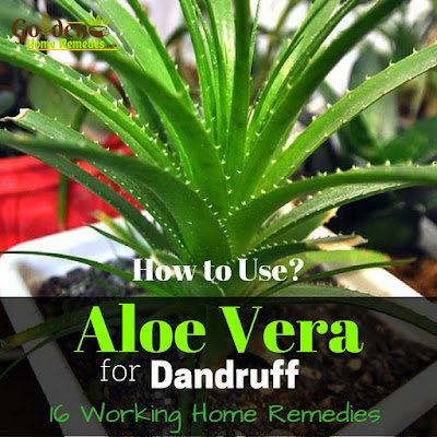 Aloe Vera For Dandruff, Aloe Vera Gel For Dandruff, How To Get Rid Of Dandruff, How To Remove Dandruff, Home Remedies For Dandruff, Dandruff Treatment, Dandruff Remedies, Treatment For Dandruff, Dandruff Home Remedy