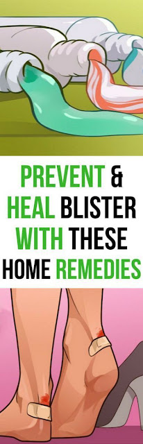 9 Home Treatments to Quickly Heal Blisters