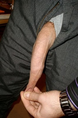 father and son foreskin