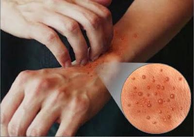 cara mengatasi gatal eksim pada kulit yang sudah parah