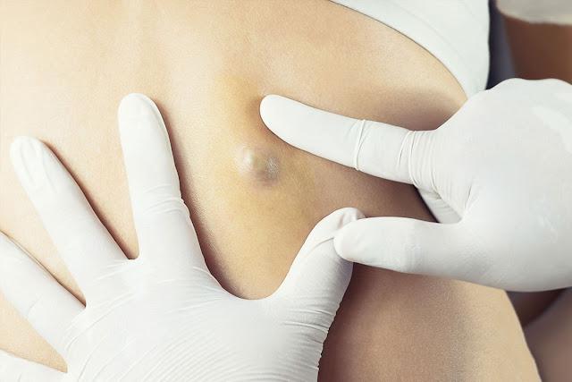 علاج الاكياس الدهنية تحت الجلد