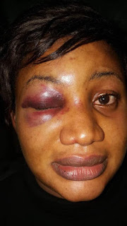 Man Batters His Wife In Port Harcourt, Almost Got Her Blind(photos)