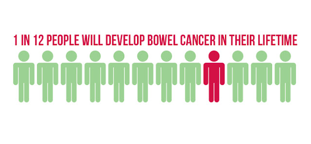 """According to a paper published in the Journal of the National Cancer Institute, bowel cancer (colorectal cancer) is rising in young people when it was previously a """"disease of the elderly,""""and a declining form of cancer."""