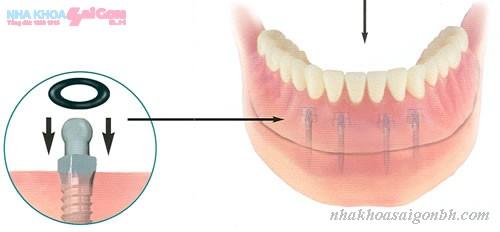 Giai phap trong rang cua bang cay ghep implant