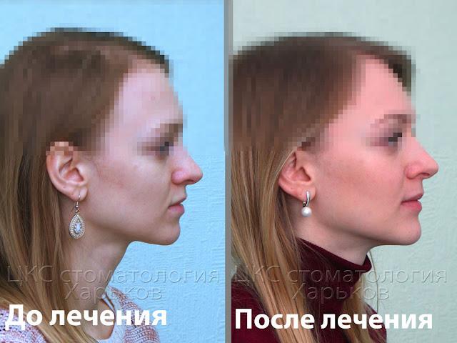 Профиль пациента до и после лечения