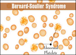 bernard soulier syndrome, ayurvedic treatment