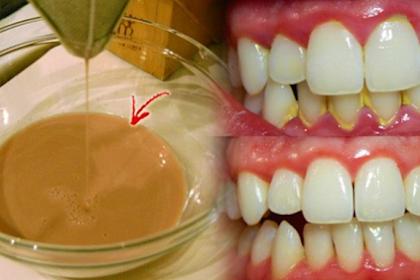 Inilah Rahasia Pemutih Gigi Alami Mampu Usir Plak Kuning di Gigi dalam Hitungan Menit