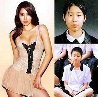 ヤバイほど劇的すぎる韓国の整形ビフォー・アフター写真 ...