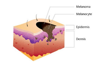 Skin Cancer Left Untreated
