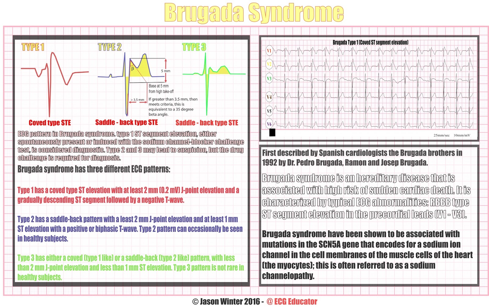 Brugada syndrome | Genetic and Rare Diseases Information ...