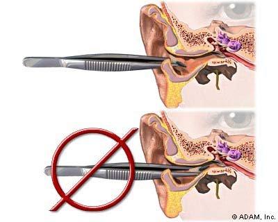 Penggunaan pinset kasus kemasukan benda di telinga