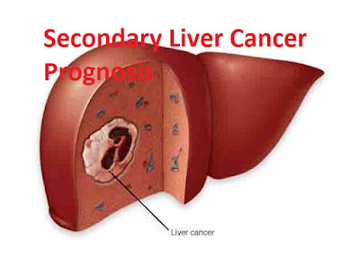 Secondary Liver Cancer Prognosis
