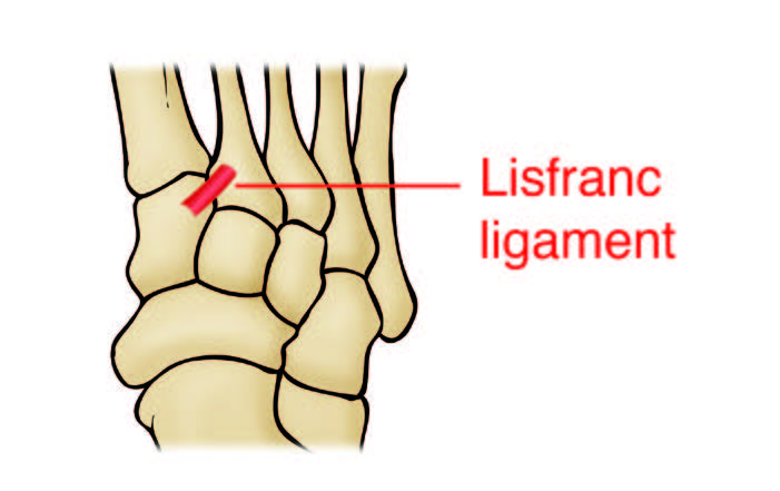 Lisfranc Injuries | An Uncommon Midfoot Injury