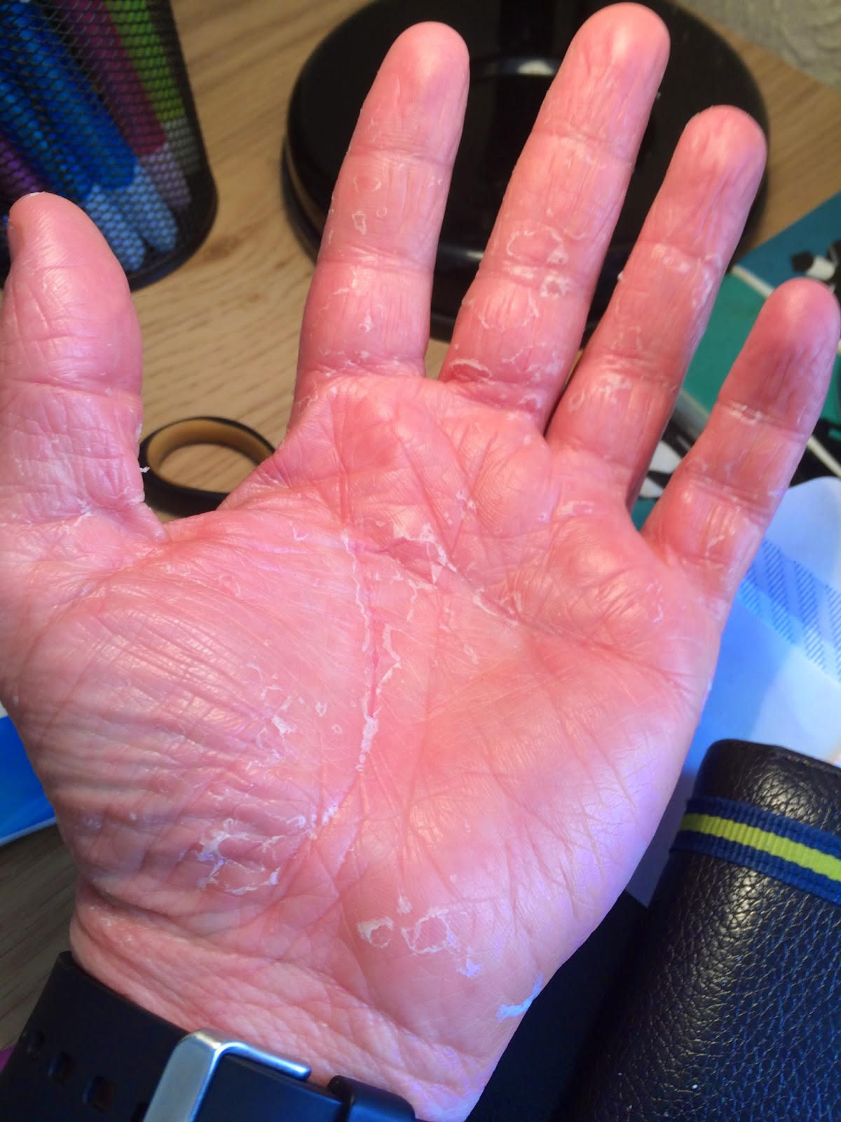 My Pityriasis Rubra Pilaris Blog Itchy Scalp-3665