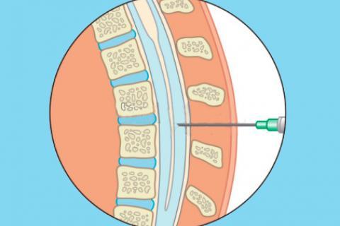 Hidrocefalia después de punción lumbar