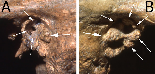Older Neanderthal survived with a little help from his friends