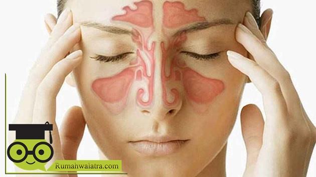 Cara Mengobati Sinusitis Dengan Air Garam