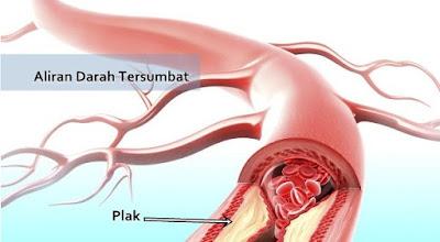 cara mengatasi aliran darah tersumbat