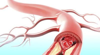 Obat Penyumbatan Arteri