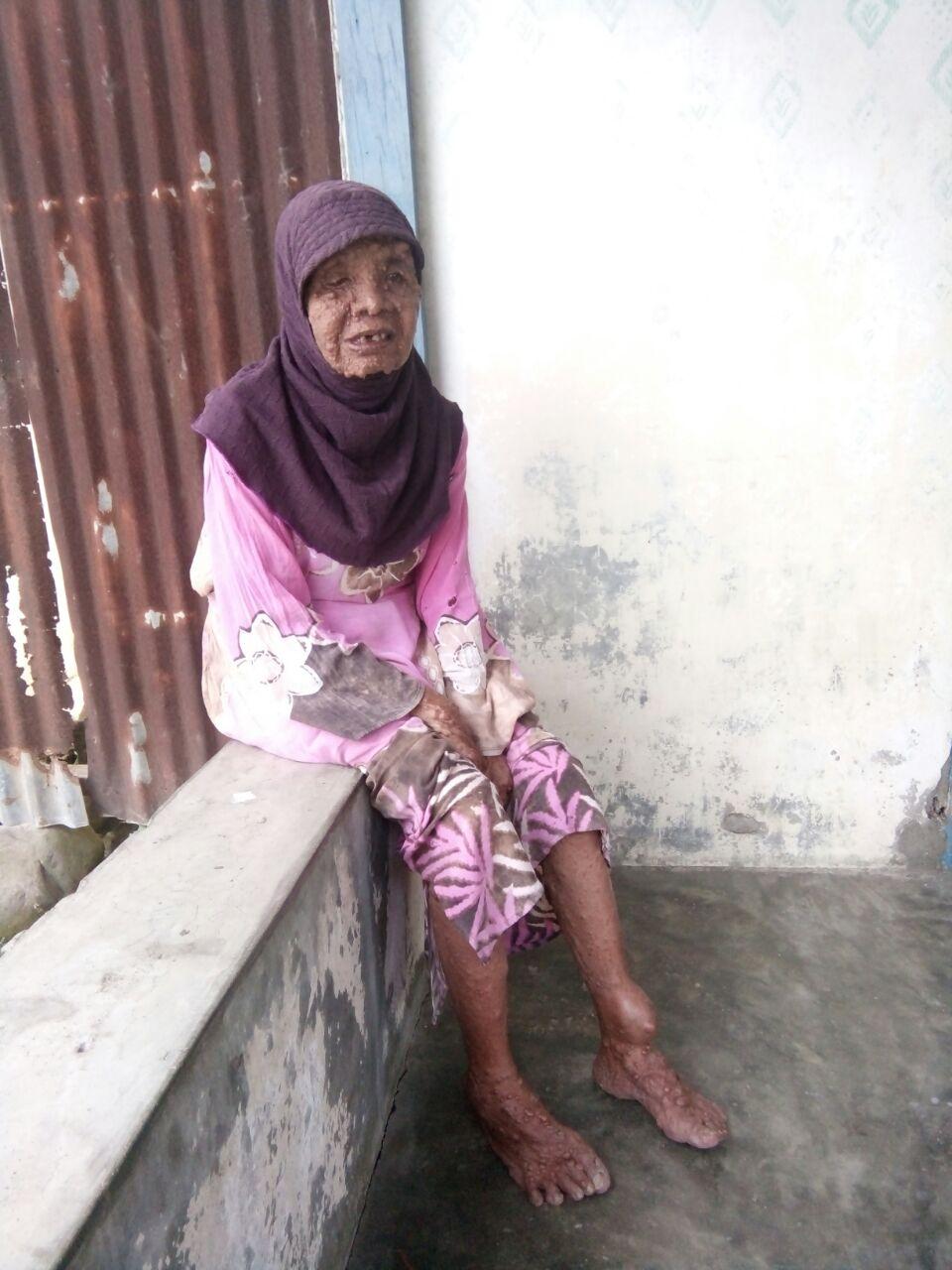 Darawati Siregar nenekasal Labura. yang sudah 39 tahun  menderita penyskit aneh