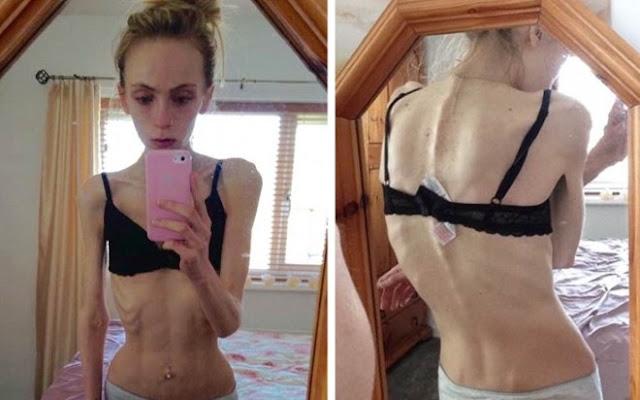 [Kόσμος]Η δύσκολη μάχη 19χρονης με την ψυχογενή ανορεξία (Φωτογραφίες)