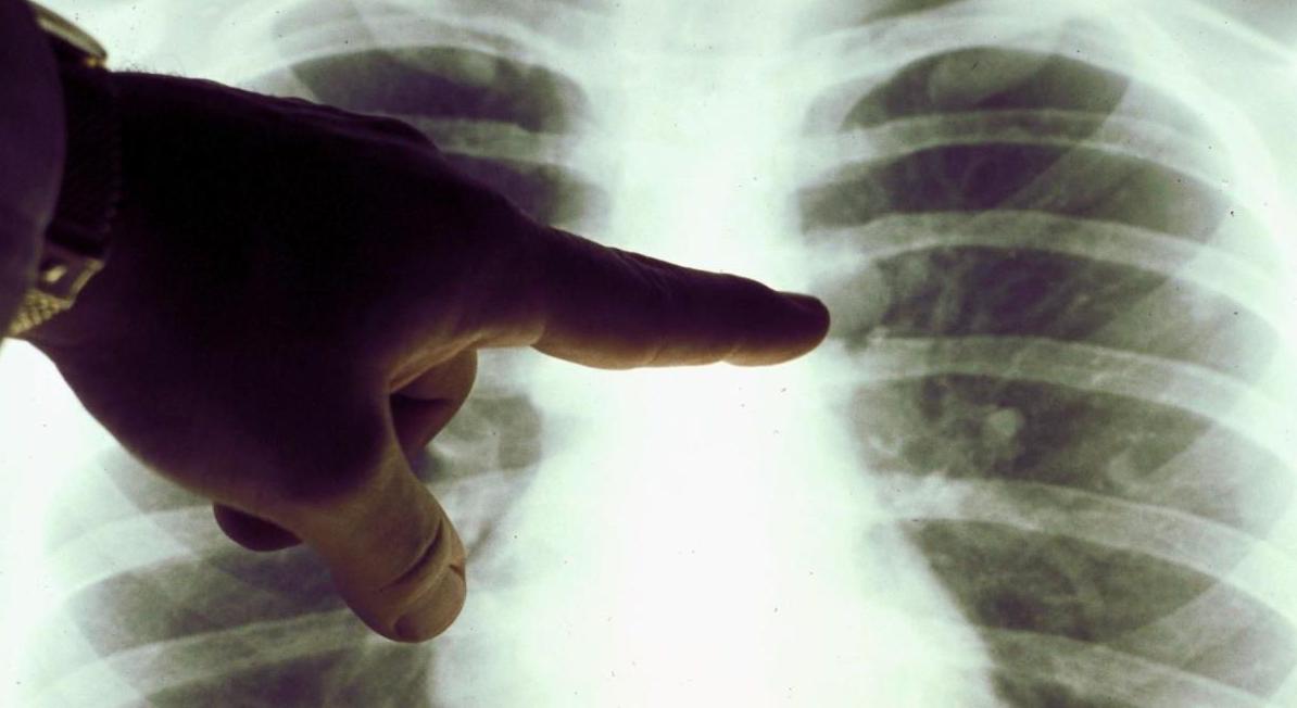 Coronavirus: recuperati, ma con polmoni danneggiati