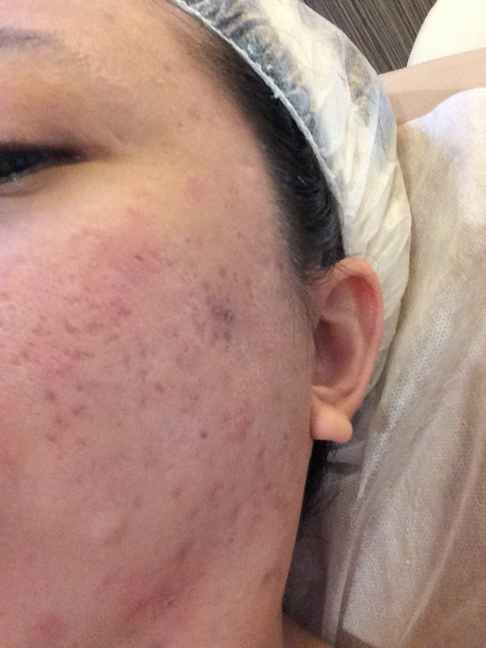 Cure facial redness — pic 13