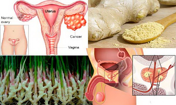 Ginger Destroys Prostate Cancer, And Ovarian And Colon Better Than Chemotherapy