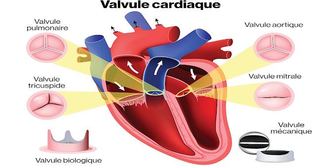 valve-cardiaque -congénitale