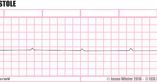 P Wave Asystole
