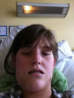 Orthognathic surgery recovery blog swelling pain jaw surgery double jaw surgery recovery room corrective jaw surgery underbite to overbite pain swelling maxillofacial braces girl blog 2013 risks complications