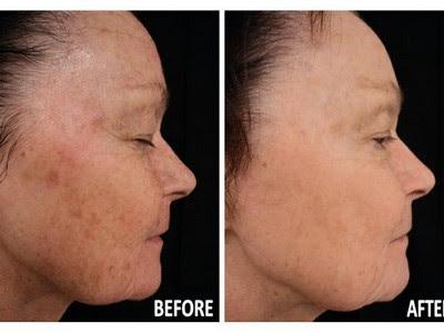 Lébo Skin Care Center