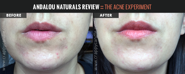 Andalou Naturals Clementine + C Illuminating Toner Before & After :: The Acne Experiment