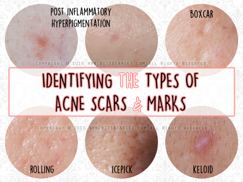 bitsdiaries about beauty & acne: understanding the types of acne, Human Body