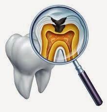 Penyebab Gigi Berlubang Berdarah , Sakit dan Cara Mengatasinya Secara Instan
