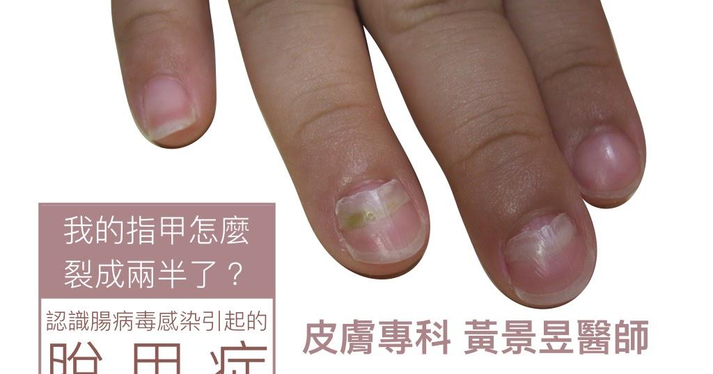 黃景昱醫師的皮膚小學堂: 我的指甲怎麼裂成兩半了? 認識腸病毒感染引起的脫甲癥(Onychomadesis)